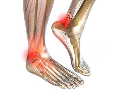 Diabetic nerve pain in hands and feet