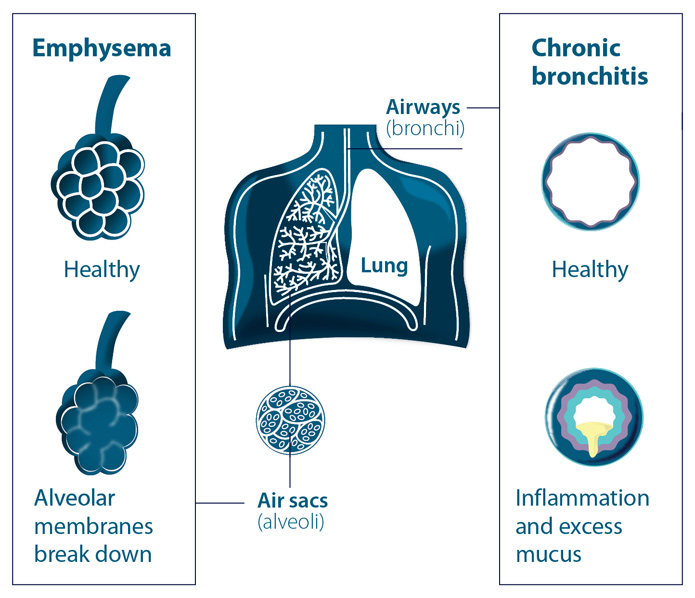 Know your disease chronic obstructive pulmonary disease copd know your disease chronic obstructive pulmonary disease copd ccuart Gallery